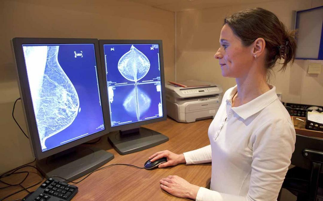 Breast Ultrasound Market to Enter 2020 Strong and Will Continue Growing Through 2023