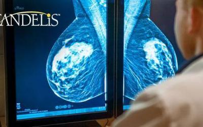 Candelis Lauded by Frost & Sullivan for Accelerating Accurate Diagnosis with Its Multi-Modal Breast Imaging Solution, Advanced Breast Imaging Enterprise Viewer